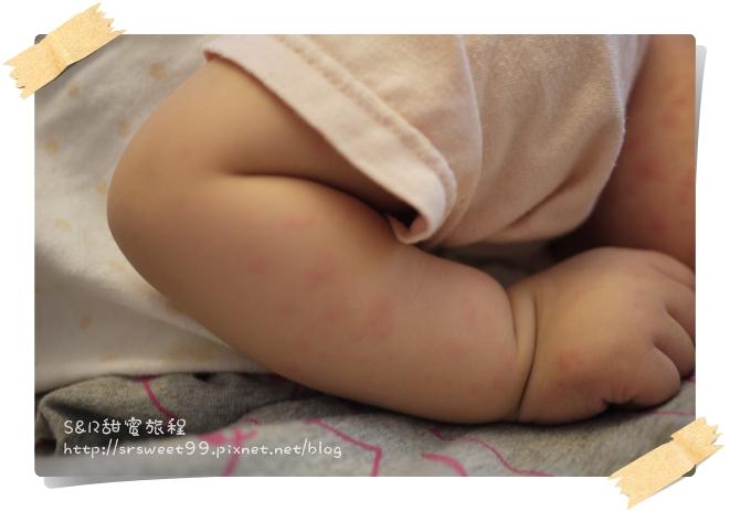 10M玫瑰疹 161.JPG