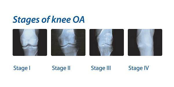 stages-of-knee