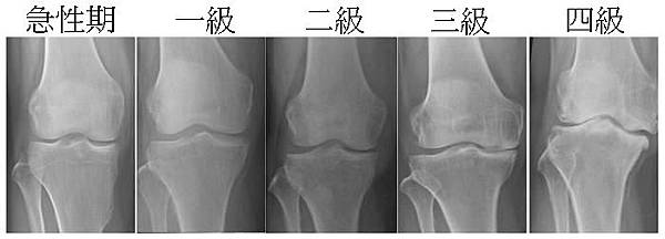 Stages_Knee_OA