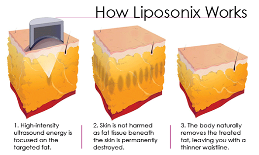 Liposonix work.png