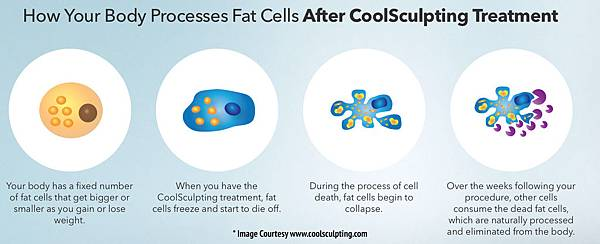 CoolSculpting-Process.jpg