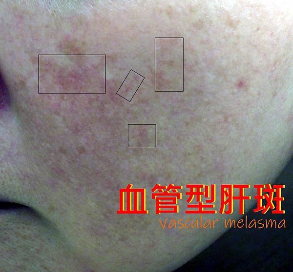 Vascular_melasma.jpg