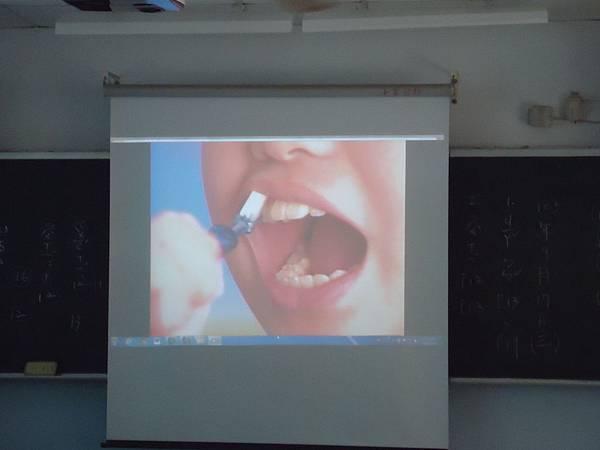 103學年一年級貝氏刷牙法教學