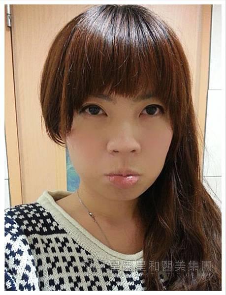 星采大安_櫻花染料雷射_淑鈴09
