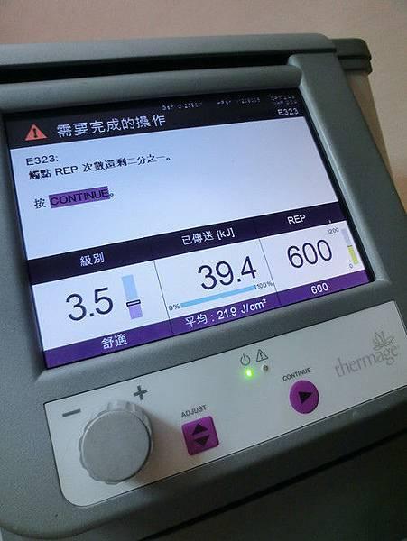 星采大安_Ultherapy極線音波拉提+電波拉皮+玻尿酸填補額頭+淚溝+蘋果肌_阿眯頭16