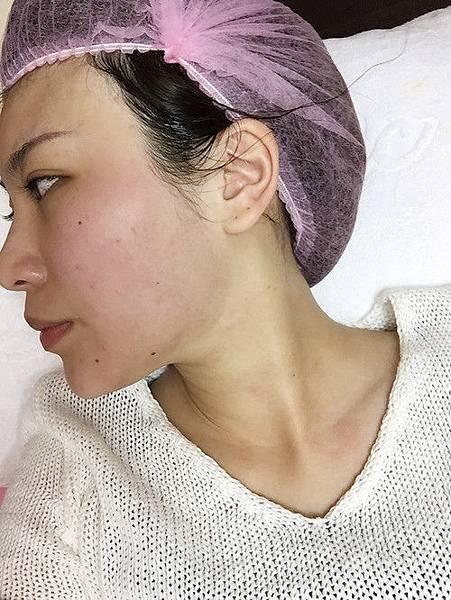 星采大安_Ultherapy極線音波拉提+電波拉皮+玻尿酸填補額頭+淚溝+蘋果肌_阿眯頭18