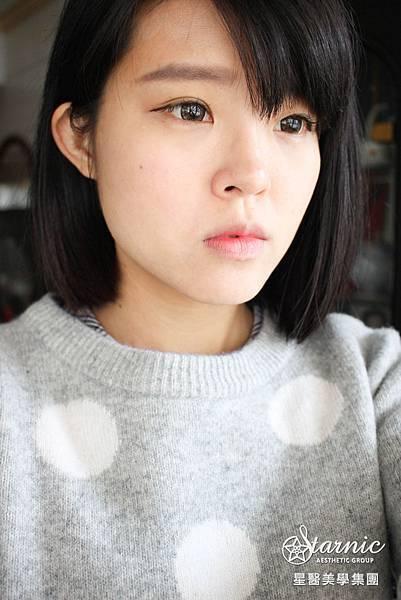 星采大安_櫻花雷射/染料雷射_劉漢偉醫師12