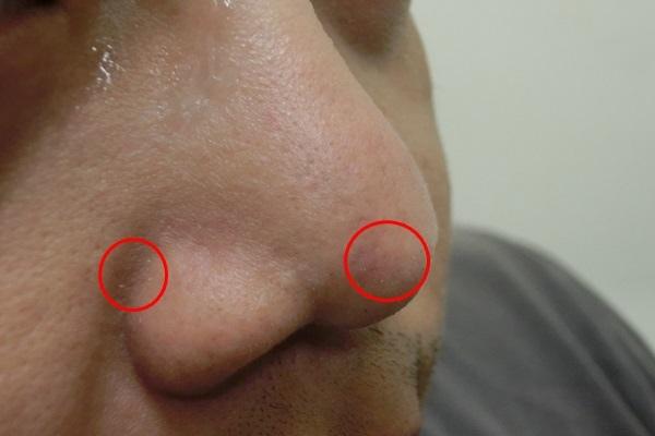 acne5.jpg