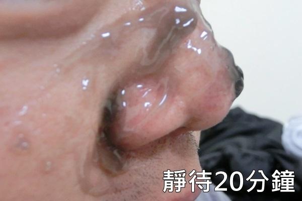 acne4.jpg