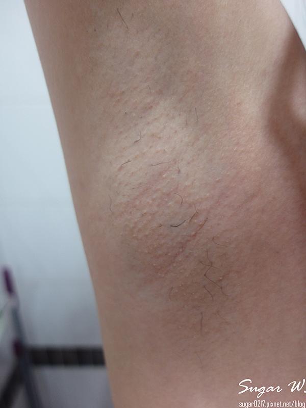 醜醜的黑頭+腋毛