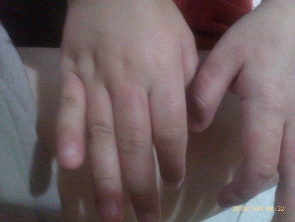 99/11/29~雯雯的手~汗皰疹~