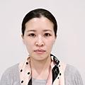 台北光澤診所蜂巢皮秒雷射17.jpg
