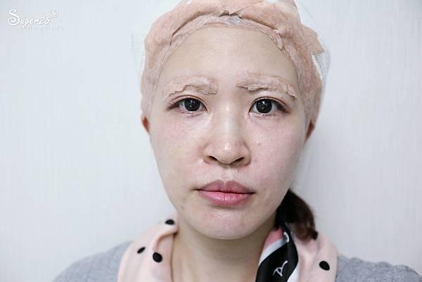 台北光澤診所蜂巢皮秒雷射25.jpg