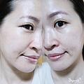 台北光澤診所蜂巢皮秒雷射33.jpg