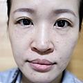 台北光澤診所蜂巢皮秒雷射34.jpg