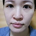 台北光澤診所蜂巢皮秒雷射35.jpg