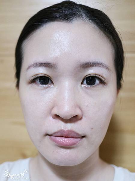台北光澤診所蜂巢皮秒雷射37.jpg