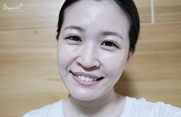 台北光澤診所蜂巢皮秒雷射38.jpg