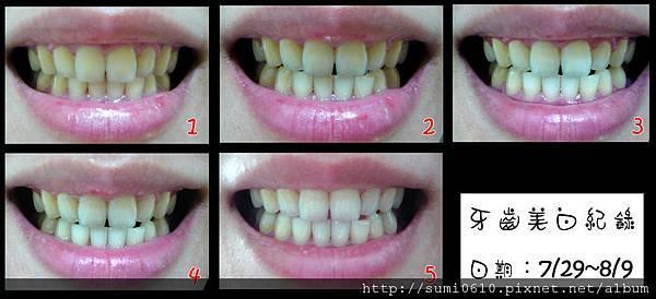 牙齒美白-1.jpg