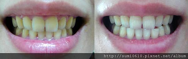 牙齒美白-2.jpg