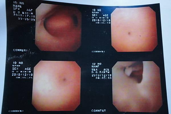 2010.12.18奇美IVF1子宮鏡檢查.jpg