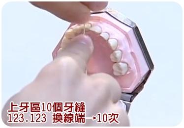 牙縫6.jpg
