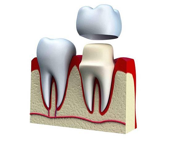 假牙製作3