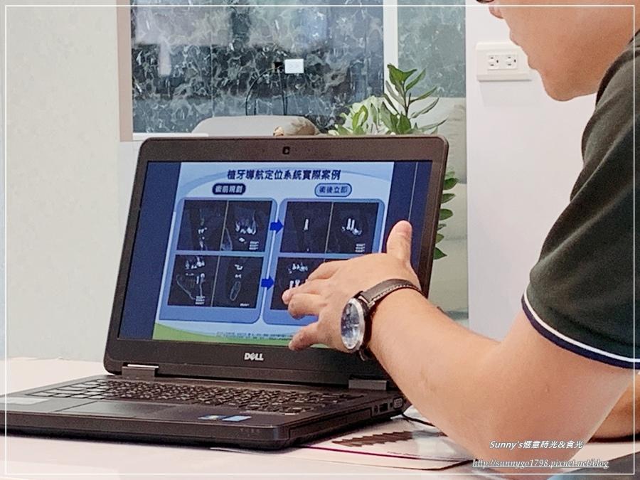 台中牙醫_正百牙醫_植牙推薦_3D列印 (54).JPG