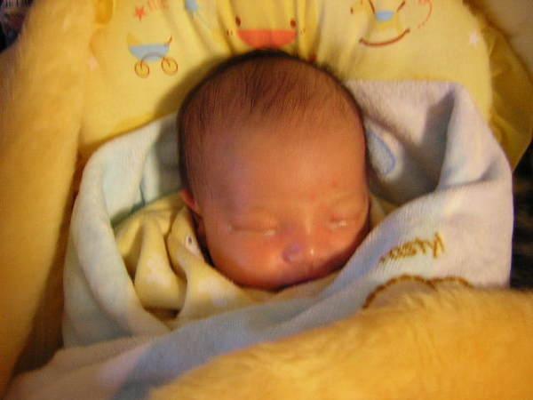 出生第5天