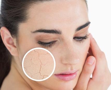<SuperFIT營養知識庫>三個方法簡單凍齡,延緩皮膚老化