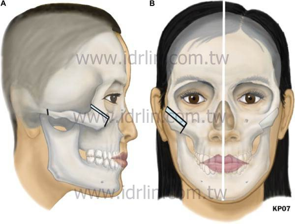 zygoma resection-25