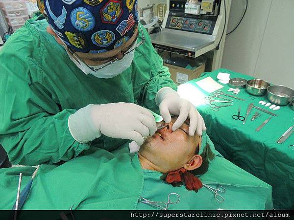 林敬鈞醫師進行隆鼻手術