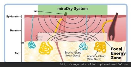 miradry-2