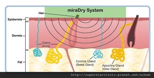 miradry-1