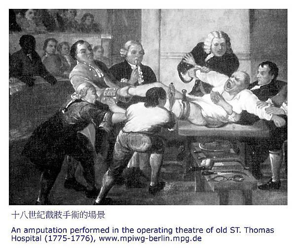 十八世紀截肢手術的場景