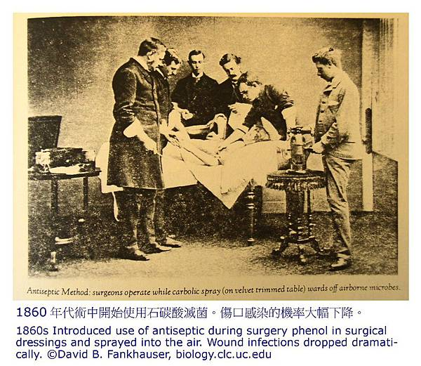 1860年代術中開始使用石碳酸滅菌
