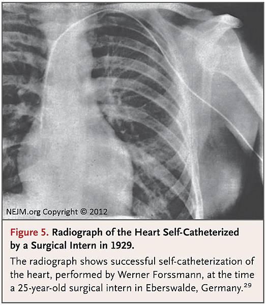 第一張心導管