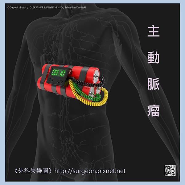 主動脈瘤-1