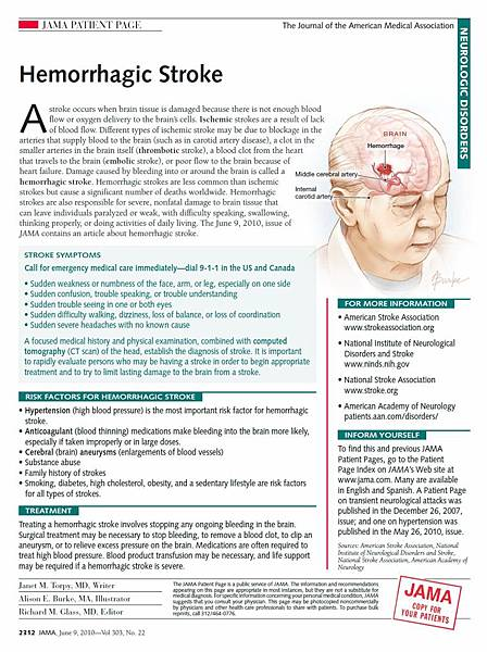 hemorrhagic stroke3