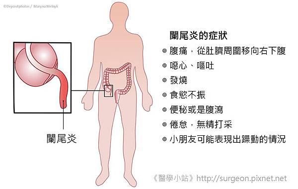 闌尾炎的症狀