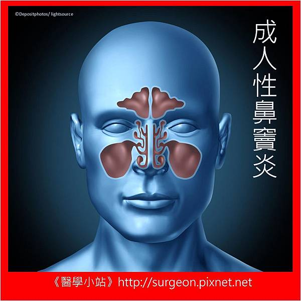 sinusitis 1