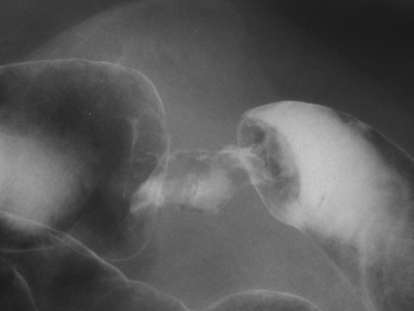 02 LGI 大腸癌.jpg