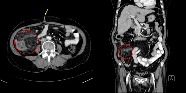 07 闌尾炎 appendicitis.jpg