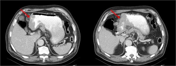 06 胃癌.jpg
