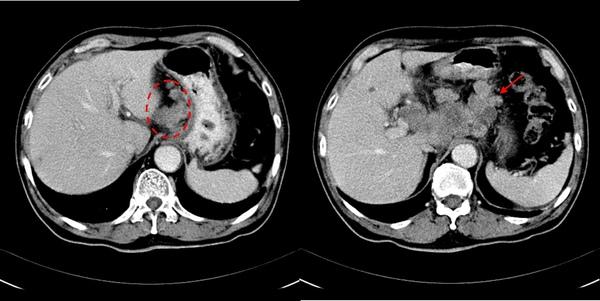 09 胃癌併淋巴結轉移-2.jpg