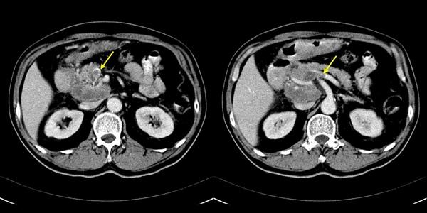 10 胃癌併淋巴結轉移造成肝門靜脈栓塞.jpg