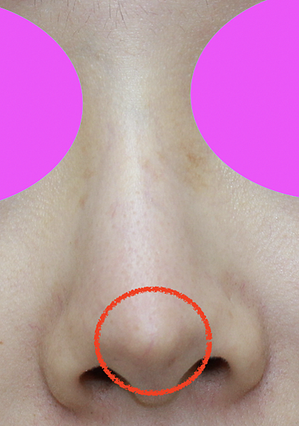 nasal implant extrusion 1.png