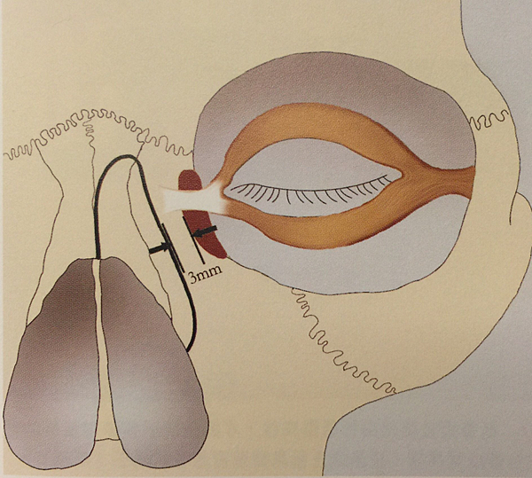 lateral osteomtomy.png