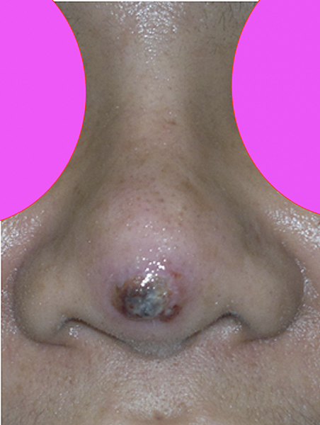 nasal implant extrusion 2.png
