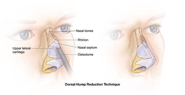 Dorsal-Hump-Final.jpg